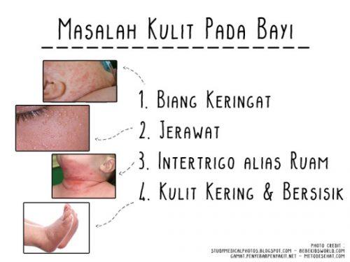 Kondisi kulit pada bayi