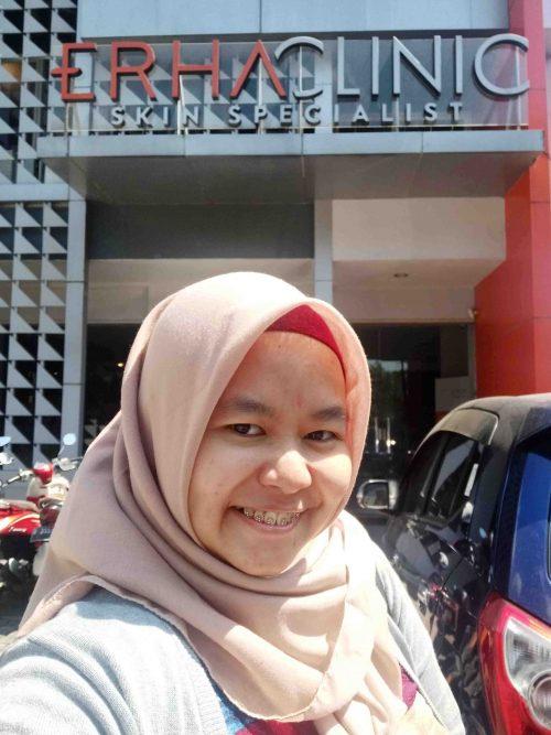 Erha Clinic Bogor - Review Erha Signature Deep Pore Cleansing Therapy (DPCT) di Erha Clinic Bogor