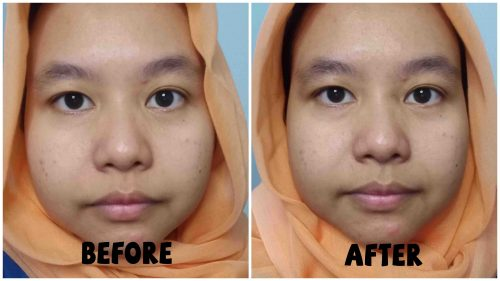 Before After memakai Clay Mask