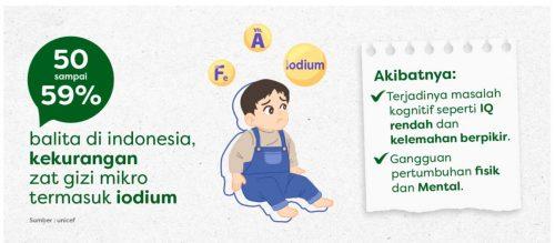 anak kekurangan iodium